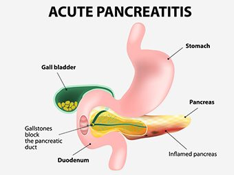 Acute Pancreatitis In Children - Causes & Symptoms