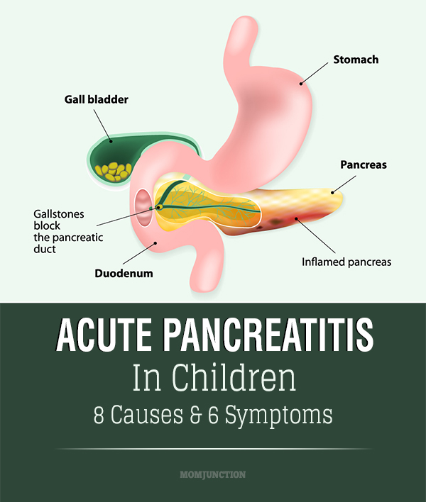 pancreatitis - photo #19