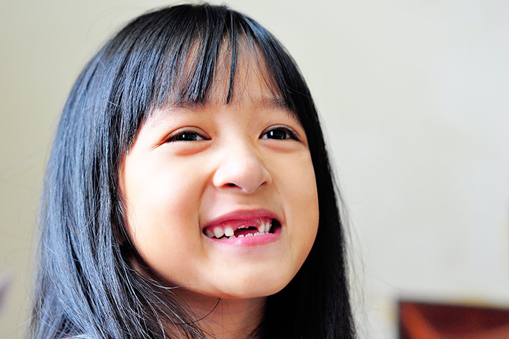 Child's Chipped Tooth