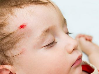 Head Injuries In Babies – Everything You Need To Know