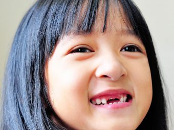 How To Deal With Your Child's Chipped Tooth?