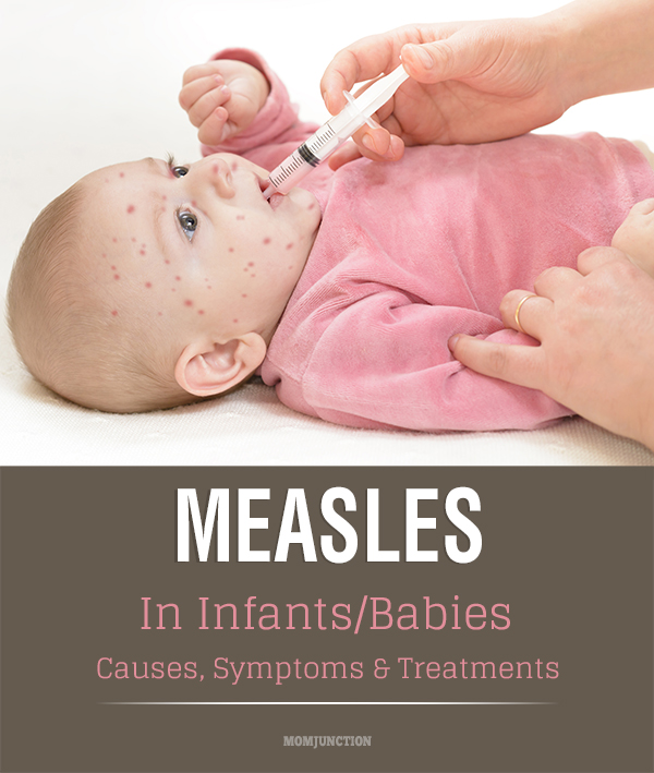 measles in babies - causes, symptoms & treatments, Human Body