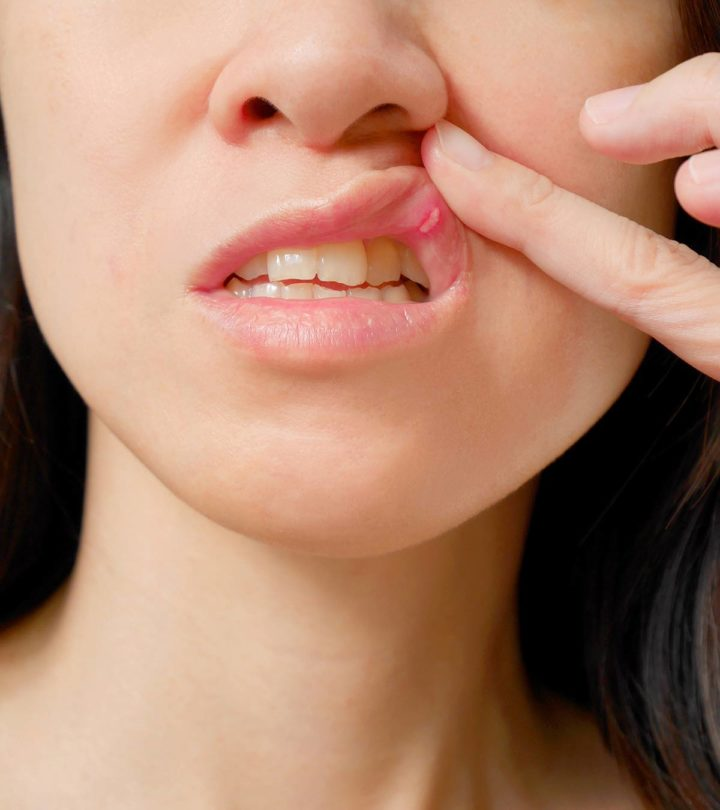 Mouth Ulcers Canker Sores In Pregnancy