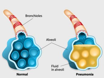 Pneumonia During Pregnancy: Causes, Symptoms And Treatment