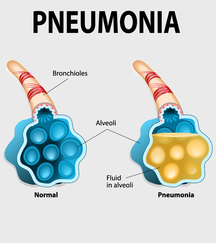 Pneumonia While Pregnant Causes Symptoms And Treatment