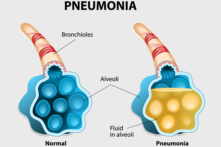 pneumonia during pregnancy – types, symptoms and prevention, Human body