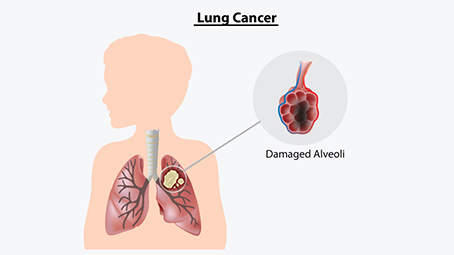 Signs-And-Symptoms-Of-Lung-Cancer-In-Children