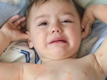 Spider Bites In Toddlers - Causes, Symptoms & Treatments