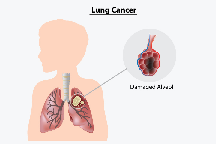 Images Of Lung Cancer In Children