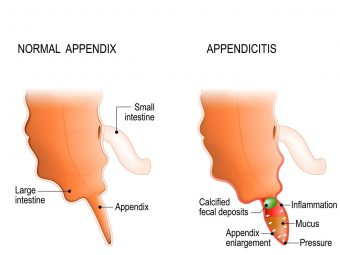 Appendicitis In Teens: Symptoms, Causes, Treatment, And Remedies