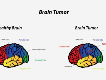 Brain Tumors In Toddlers – Causes, Symptoms & Treatments