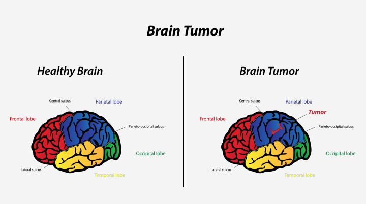 tumor early brain tumor symptoms
