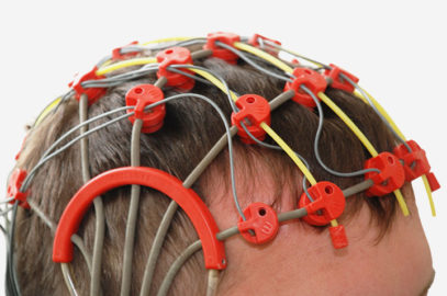 Epilepsy In Teens - Causes, Symptoms & Treatments