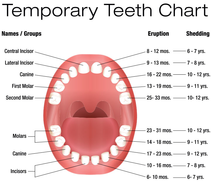 Here is what the teeth will look like in the mouth