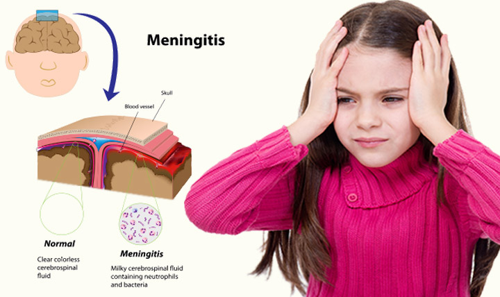 Meningitis In Children