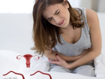 All About Polycystic Ovary Syndrome (PCOS) In Teens