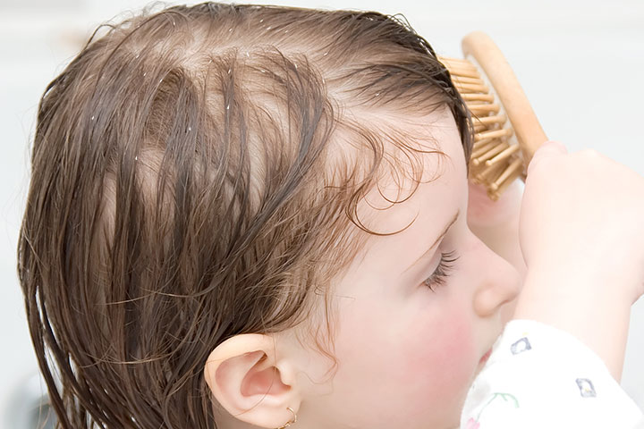 Dandruff In Toddlers