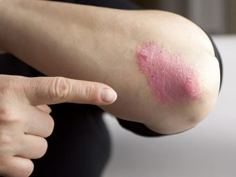 Eczema In Teens – Causes, Symptoms And Remedies