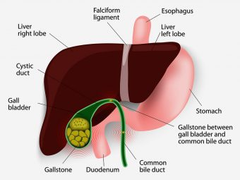 Gallstones In Children – Everything You Need To Know