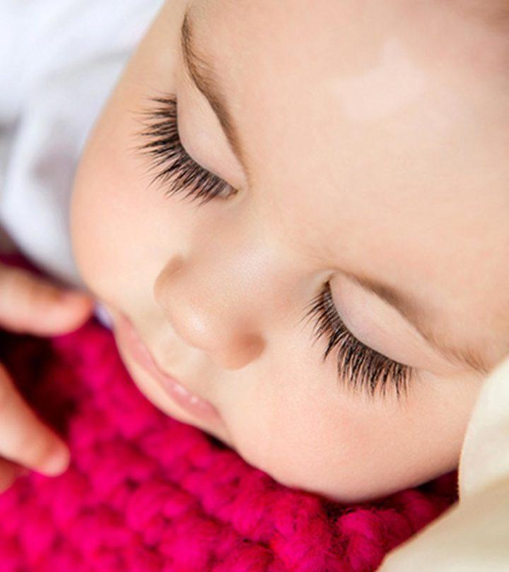 Vitiligo In Babies