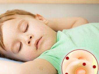 Warts In Toddlers - Causes, Types & Treatments You Should Be Aware Of
