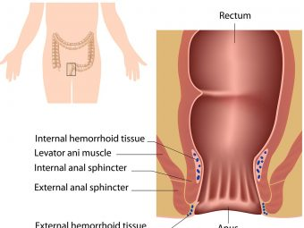 Hemorrhoids In Teens: Causes, Symptoms, And Treatment