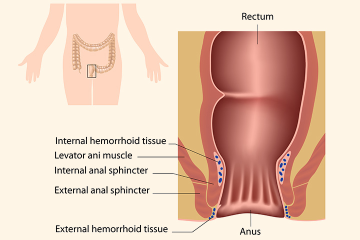 Can you get hemorrhoids from anal sex