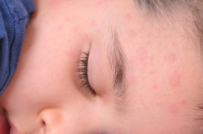 Hives In Children - Causes, Symptoms, And Natural Remedies