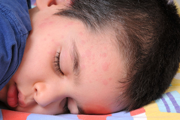 Hives Or Urticaria In Children