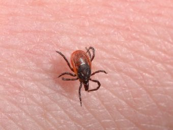 Lyme Disease In Babies - Everything You Need To Know