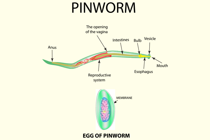 Pinworm Infection During Pregnancy Causes, Diagnosis, And Treatment