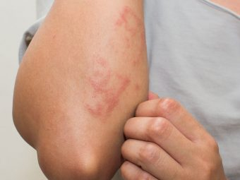 Postpartum Hives: Causes Symptoms Treatment And Remedies