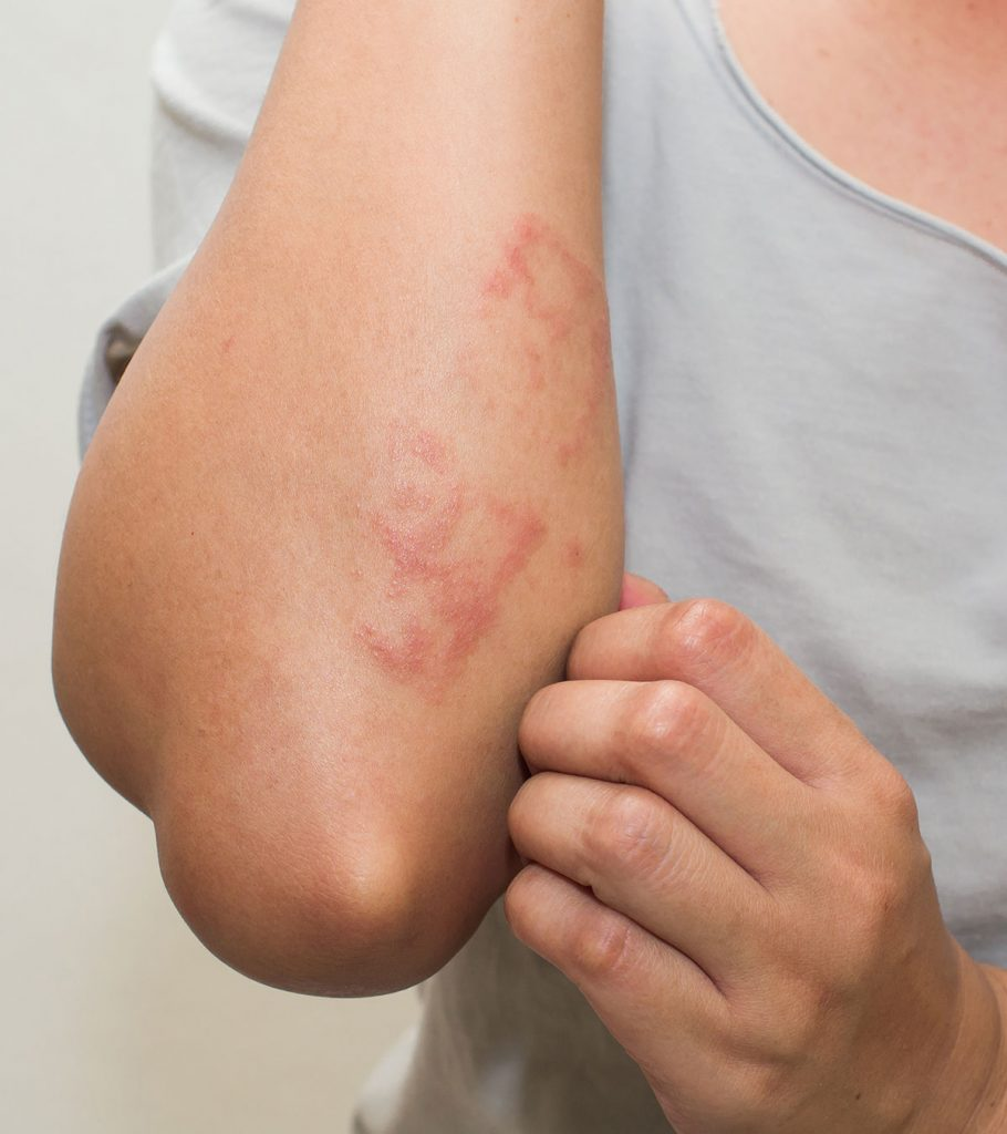 Postpartum Hives Causes Symptoms Treatment And Remedies
