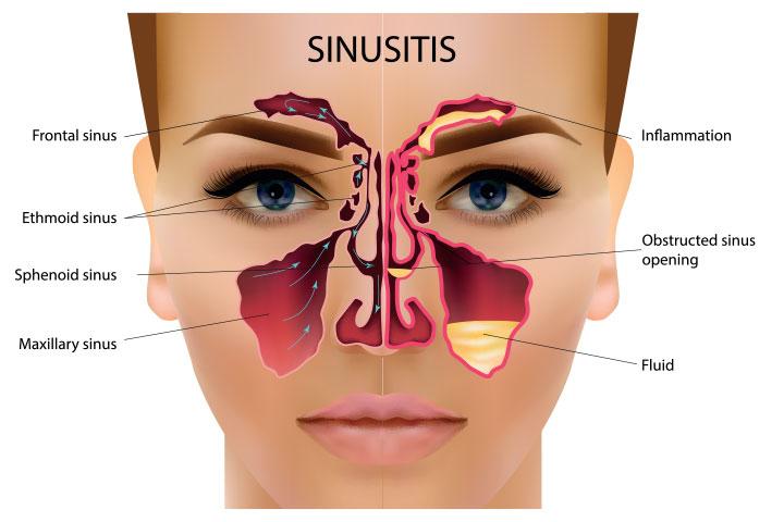 Sinus Infection When Breastfeeding