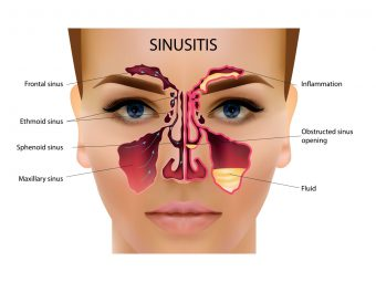 Sinus Infection When Breastfeeding: Treatment And Home Remedies