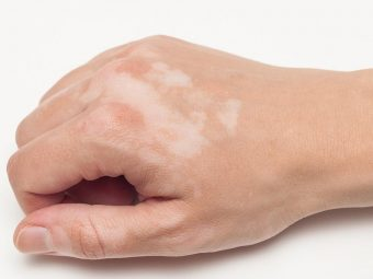 Vitiligo In Children – Prevention And Treatment