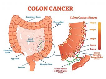 Colon Cancer In Teens: Symptoms, Causes, Treatment And Risk Factors