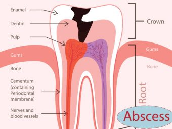Abscess Tooth While Pregnant - Causes, Symptoms & Preventions You Should Be Aware Of