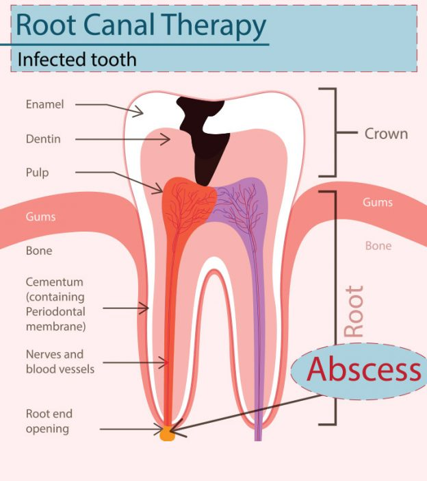 Abscess Tooth While Pregnant - Causes, Symptoms