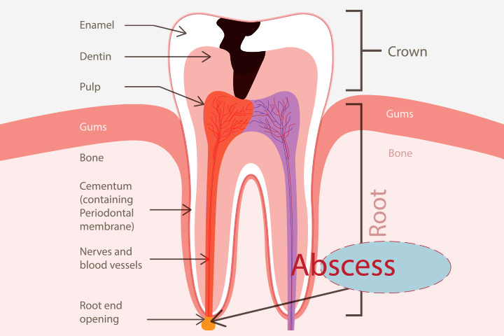 Abscess Tooth While Pregnant