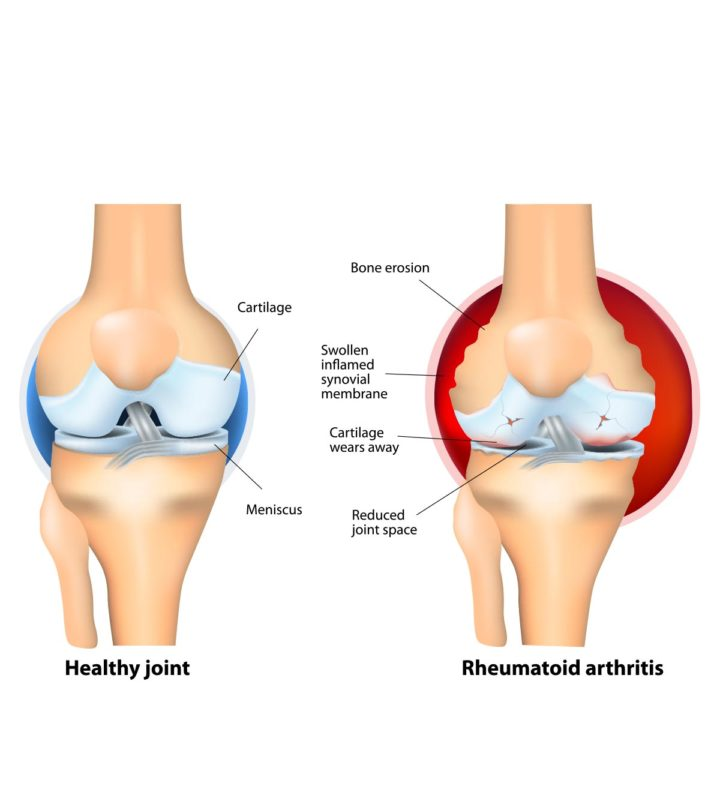 Arthritis After Pregnancy
