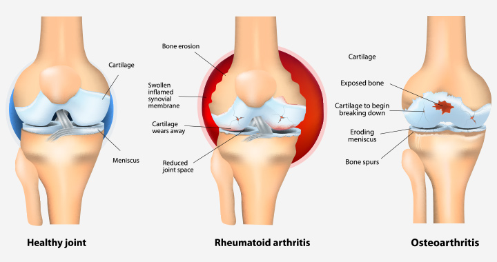 Arthritis After Pregnancy