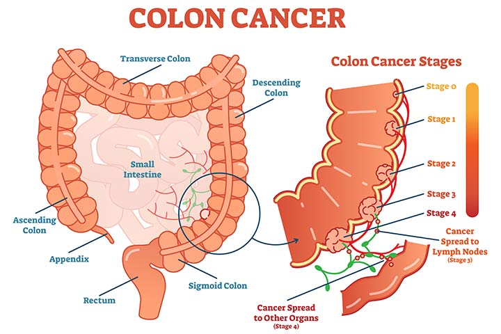 6 Symptoms And 11 Risk Factors Of Colon Cancer In Teens