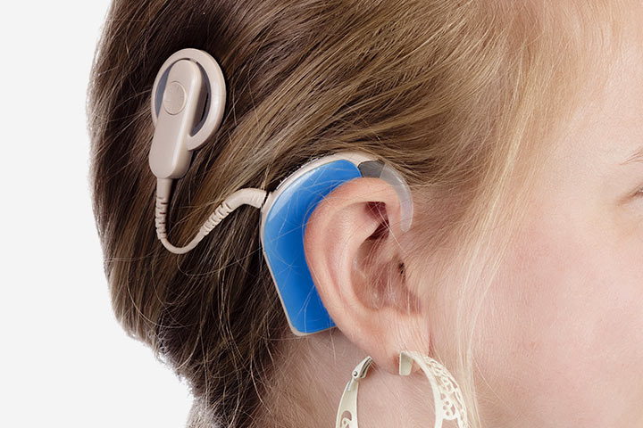 an overview of cochlear implants This foundational-level course is designed to provide audiologists who are new to cochlear implants an overview of the candidacy requirements for cochlear implants as.