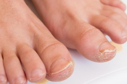 Fungal Nail Infection In Children: Symptoms, Remedies And Treatment