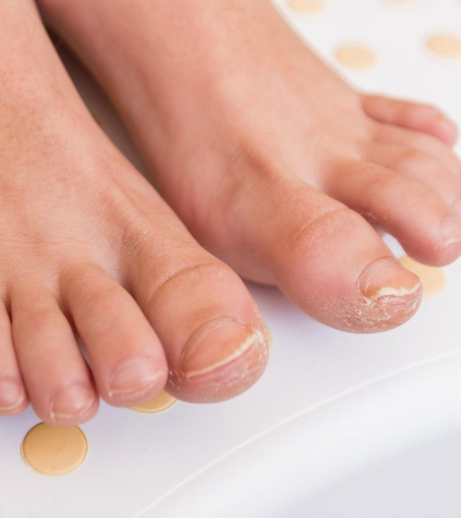 9 Remedies For Treating Fungal Nail Infection In Children