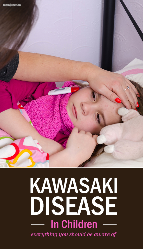 Home   187  Kid   187  HealthKawasaki Disease In Children
