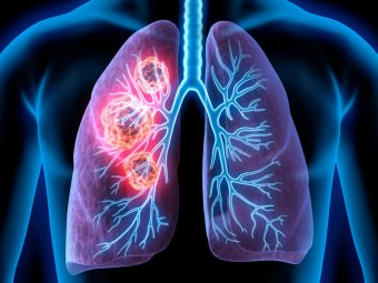 Lung Cancer In Teens: Signs, Causes, Treatment And Survival Rate