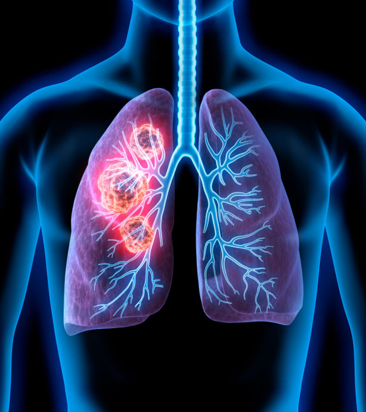 Lung Cancer In Teens Signs, Causes
