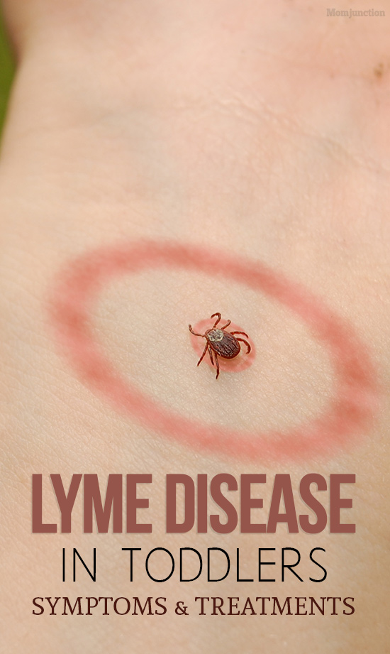 5 Things to Do When Your Child has Lyme Disease